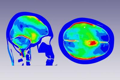 2020-11-brain-strain-figure-1.jpg