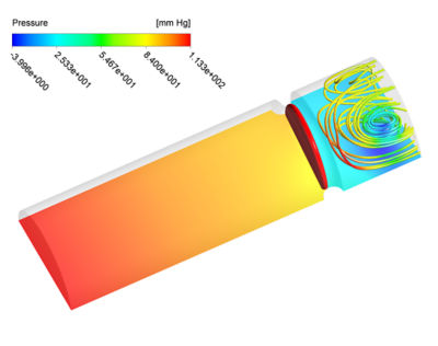 Using Ansys for Doctorial Research in Cardiovascular Engineering