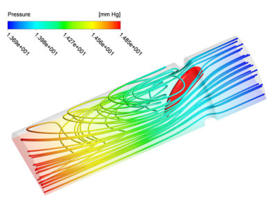 Figure 2: 0D-3D coupled simulation. Pressure contour plot along with pressure streamlines during contraction (left) and relaxation (right) of the ventricle and heart.