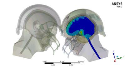 Helmet-to-helmet-impact.png