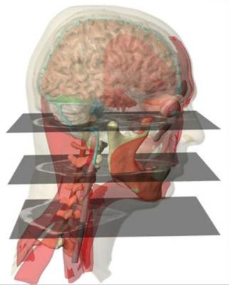 MRI-based-head-model-for-helmet-impact-simulation.jpg