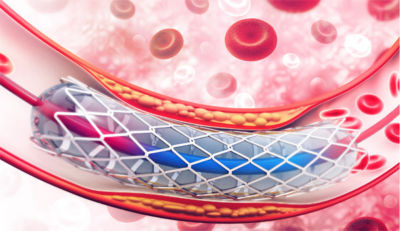 Visualization of a stent in an artery
