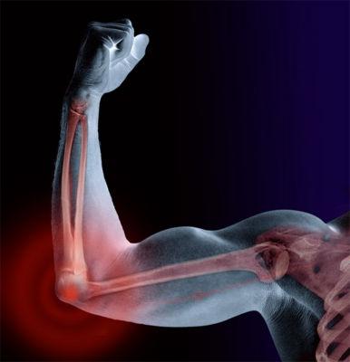 is-bone-material-stronger-than-steel-1.jpg
