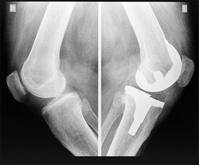 is-bone-material-stronger-than-steel-2.jpg
