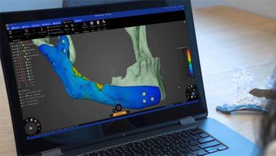 repairing-bone-loss-with-simulation-2.jpg