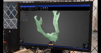 repairing-bone-loss-with-simulation-3.jpg