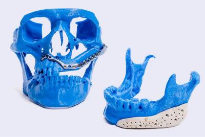 repairing-bone-loss-with-simulation-hero.jpg