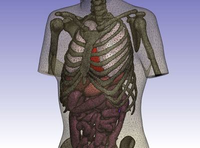 Meshed human body model generated from CT images in Simpleware.